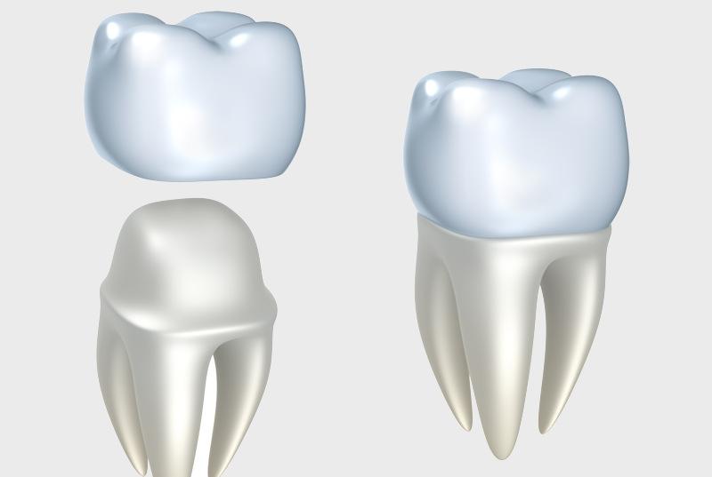 Teeth Whitening & Cosmetic Dentistry | Bathurst Dentist